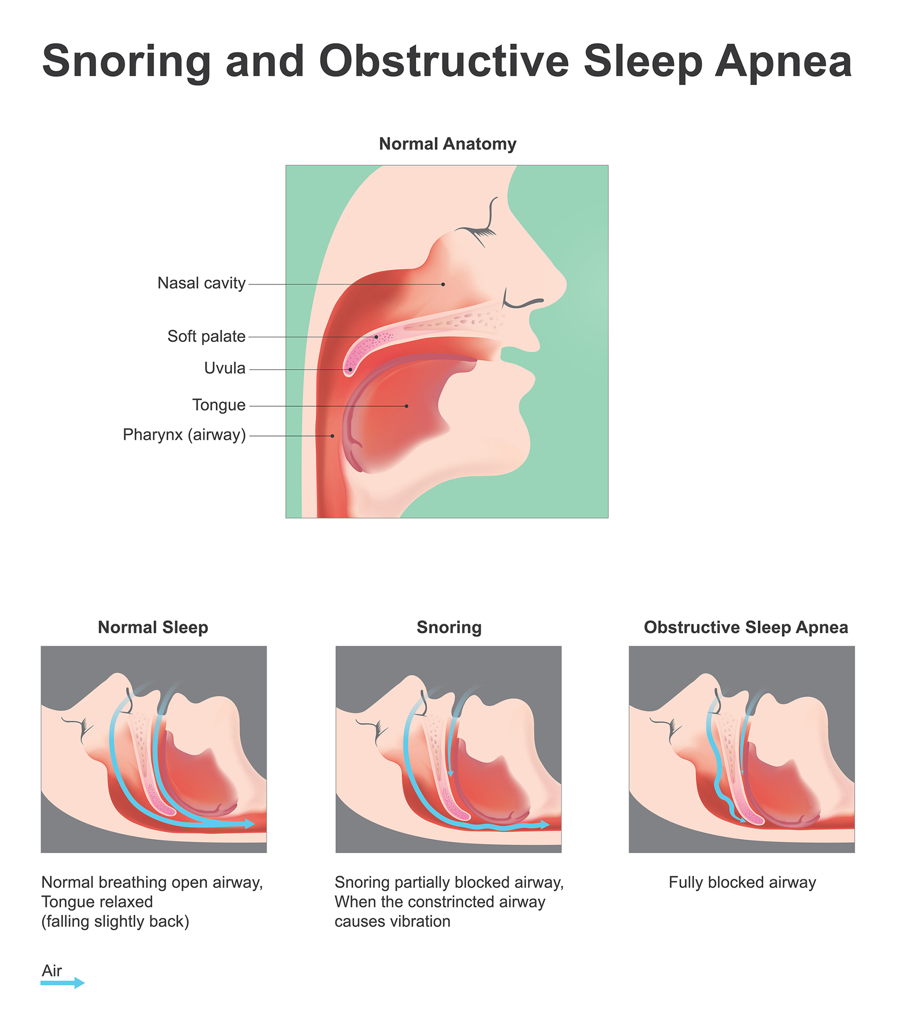 sleep wellness institute graphic of snoring and sleep apnea